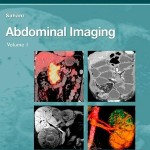 Abdominal Imaging, 2-Volume Set: Expert Radiology Series Expert Consult- Online and Print, 1e