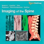Imaging of the Spine: Expert Radiology Series, Expert Consult-Online and Print, 1e