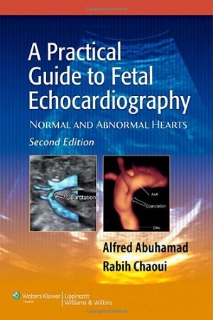 Practical Guide to Fetal Echocardiography