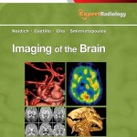 Imaging of the Brain: Expert Radiology Series, 1e