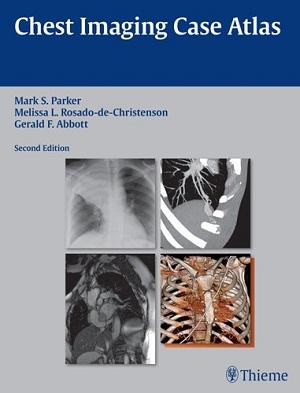 Neurosonology and Neuroimaging of Stroke: A Teaching Atlas