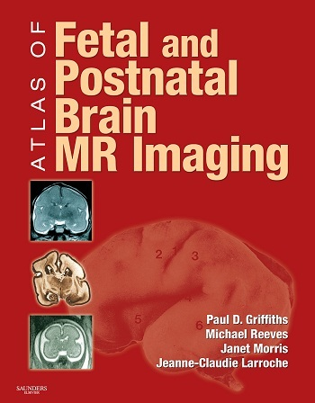 Atlas of fetal and postnatal brain mr imaging