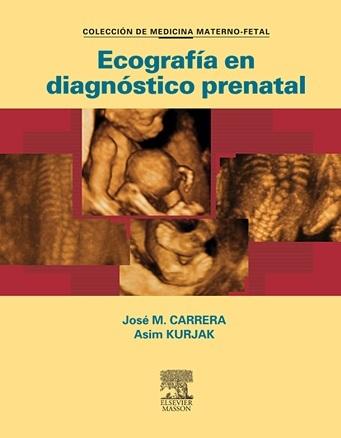 Ecografia en diagnostico prenatal