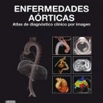 Enfermedades aórticas: Atlas de diagnóstico clínico por imagen
