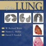 High-Resolution CT of the Lung, 4th Edition