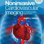 NonInvasive Cardiovascular Imaging: A Multimodality Approach Retail PDF