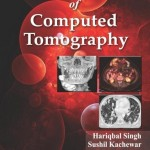 Practical Atlas of Computed Tomography