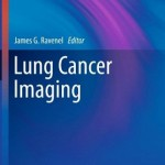 Lung Cancer Imaging (Contemporary Medical Imaging)
