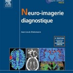 Neuro imagerie diagnostique, 2ème édition