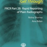 Get Through FRCR Part 2B: Rapid Reporting of Plain Radiographs