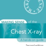 Making Sense of the Chest X-ray, Second Edition: A hands-on guide, 2nd Edition