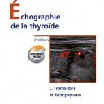 Échographie de la thyroïde 2ème édition