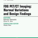 FDG PET/CT Imaging: Normal Variations and Benign Findings – Translation to PET/MRI, An Issue of PET Clinics,