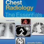 Chest Radiology: The Essentials, 3rd Edition