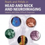 Pearls and Pitfalls in Head and Neck and Neuroimaging: Variants and Other Difficult Diagnoses