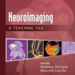 Neuroimaging: A Teaching File Retail PDF