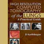 High Resolution Computed Tomography of the Lungs: A Practical Guide