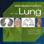 High-Resolution CT of the Lung 5th Edition Retail PDF