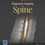 Diagnostic Imaging: Spine (Retail PDF)