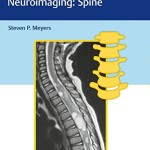 Differential Diagnosis in Neuroimaging: Spine