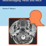 Differential Diagnosis in Neuroimaging: Head and Neck