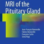 MRI of the Pituitary Gland 2016