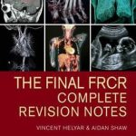 The Final FRCR : Complete Revision Notes