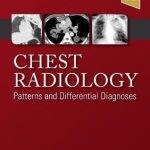 Chest Radiology : Patterns and Differential Diagnoses