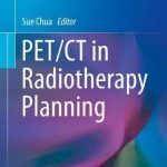PET/CT in Radiotherapy Planning