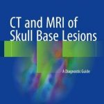 CT and MRI of Skull Base Lesions : A Diagnostic Guide