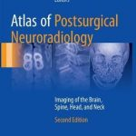 Atlas of Postsurgical Neuroradiology : Imaging of the Brain, Spine, Head, and Neck