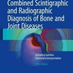 Combined Scintigraphic and Radiographic Diagnosis of Bone and Joint Diseases : Including Gamma Correction Interpretation