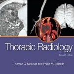 Thoracic Radiology: The Requisites, 2e