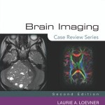 Brain Imaging: Case Review Series, 2nd Edition