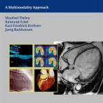 Cardiac Imaging: A Multimodality Approach