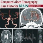 Computed Aided Tomography Case Histories: Brain, 2nd Edition
