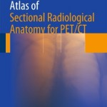 Atlas of Sectional Radiological Anatomy for PET/CT