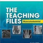 The Teaching Files: Musculoskeletal Expert Consult – Online and Print
