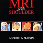 MRI of the Shoulder                    / Edition 2