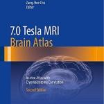 7.0 Tesla MRI Brain Atlas: In-vivo Atlas With Cryomacrotome Correlation