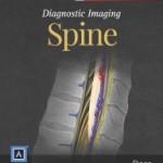 Diagnostic Imaging: Spine (Retail PDF)
