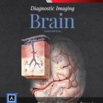 Diagnostic Imaging: Brain, 3rd Edition