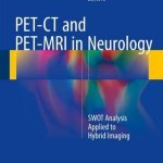 PET-CT and PET-MRI in Neurology 2016 : SWOT Analysis Applied to Hybrid Imaging