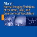 Atlas of Normal Imaging Variations of the Brain, Skull, and Craniocervical Vasculature