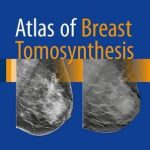 Atlas of Breast Tomosynthesis : Imaging Findings and Image-Guided Interventions