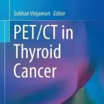 PET/CT in Thyroid Cancer