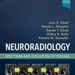 Neuroradiology Spectrum and Evolution of Disease (Hb 2019)