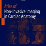 Atlas of Non-Invasive Imaging in Cardiac Anatomy