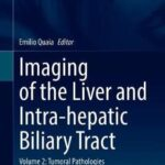 Imaging of the Liver and Intra-hepatic Biliary Tract : Volume 2: Tumoral Pathologies