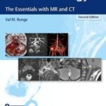 Neuroradiology : The Essentials with MR and CT